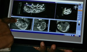 A doctor shows a scan of the mouth of a 7-year-old boy inside a hospital in Chennai, India.