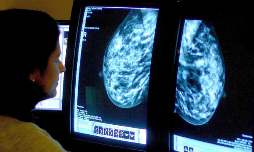 A consultant analysing a mammogram