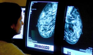A consultant analyses a mammogram.