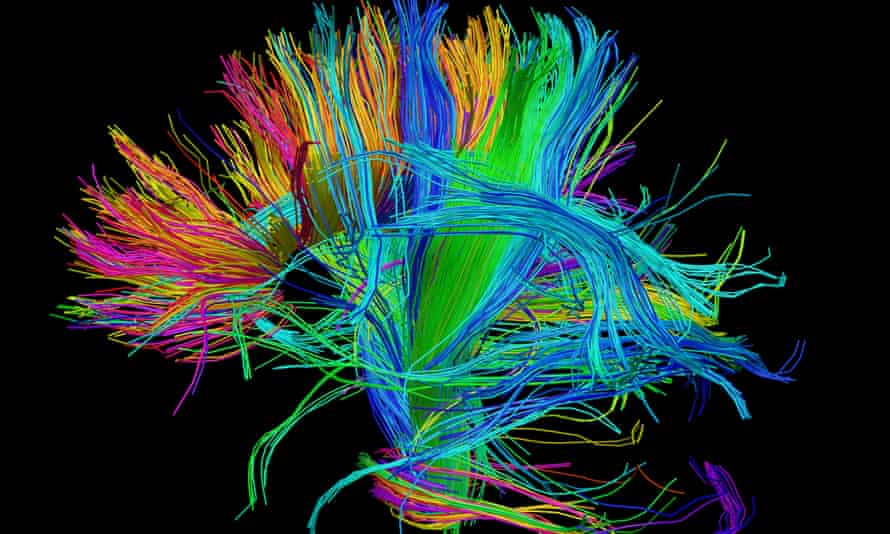 A scan of the bundles of white matter nerve fibres in the brain.