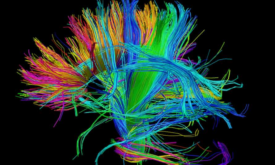 Coloured 3D diffusion spectral imaging (DSI) scan of the bundles of white matter nerve fibres in the brain.
