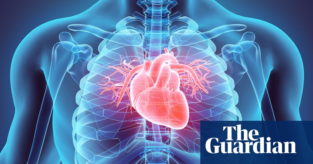 Genetic mutation made humans susceptible to heart attack society