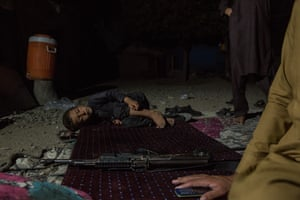 Assad, six, from Khost province in Afghanistan