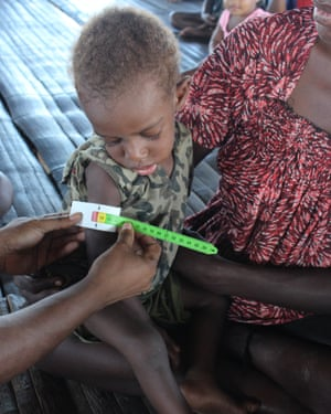 Malnourished child, Papua New Guinea