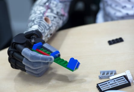 Josh demonstrates the versatility of his new hand by assembling Lego.
