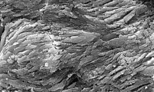 High-resolution scanning electron microscope image of fossil dinosaur dandruff showing the high density of keratin fibres.