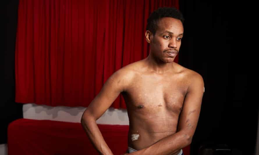 Ali Issa Ahmad reveals scars on his torso.