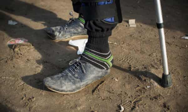 A man wearing ill-fitting shoes