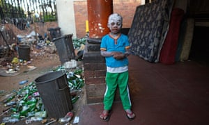 Four year old Senzo Qwabe, smeared with calamine lotion to ease the itching of his chickenpox, outside the home he shares with his mother in an abandoned house on Soper Street in Berea, central Johannesburg.