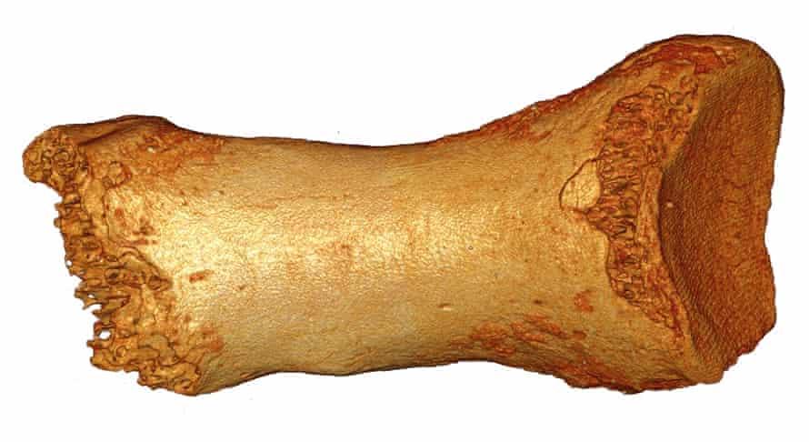Dorsal view of the Neanderthal woman's toe bone.