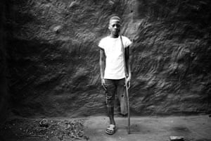 Rogério Lucas, 14, lost his leg as a baby
