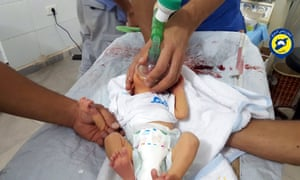 A rescue worker treating a baby allegedly affected by a chlorine gas attack in Saraqeb.