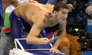 US swimmer and multiple medal-winner Michael Phelps covered in the red circles that result from 'cupping' therapy.
