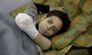 A boy injured boy by bombing in Damascus, Syria