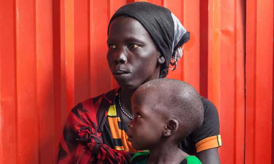 A woman and her malnourished child wait to receive treatment at the Leer hospital in South Sudan.
