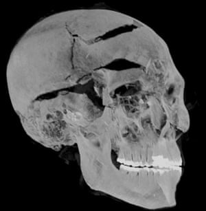 Vally of the Kings, Egypt. A photo provided by Egyptian Ministry of Tourism and Antiquities shows a computerised tomography (CT) scan image of the skull of the ancient Egyptian king Seqenenre Tao II, who was killed in battle with invaders