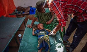 A malnourished Somali child from a refugee camp in the town of Doolow, on the border with Ethiopia, receiving treatment.
