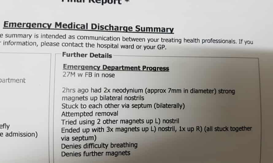 Hospital record: Daniel Reardon's discharge report after presenting at hospital with magnets stuck up his nose.
