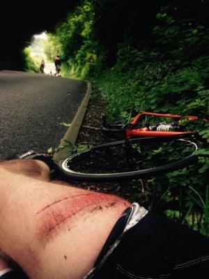 Alec James after his crash at the Velothon Wales..
