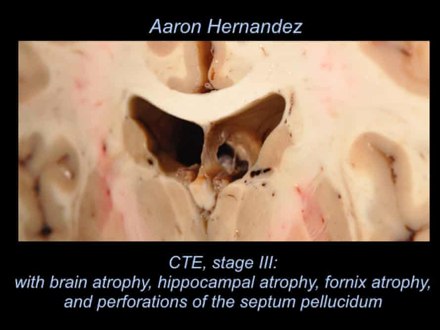 Aaron Hernandez's brain