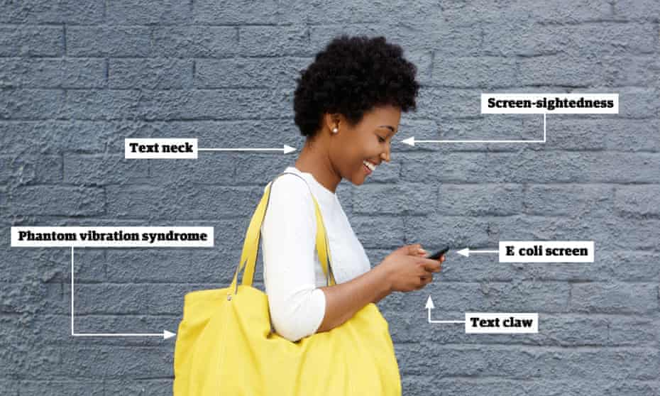 iStrain: apart from silly walks, other smartphone ailments include 'text claw', 'text neck', 'screen-sightedness' and so on.
