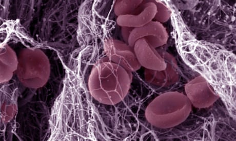 High blood platelet count 'as good a cancer predictor as a lump in the breast'