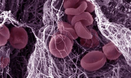 This image shows the components of a blood clot.