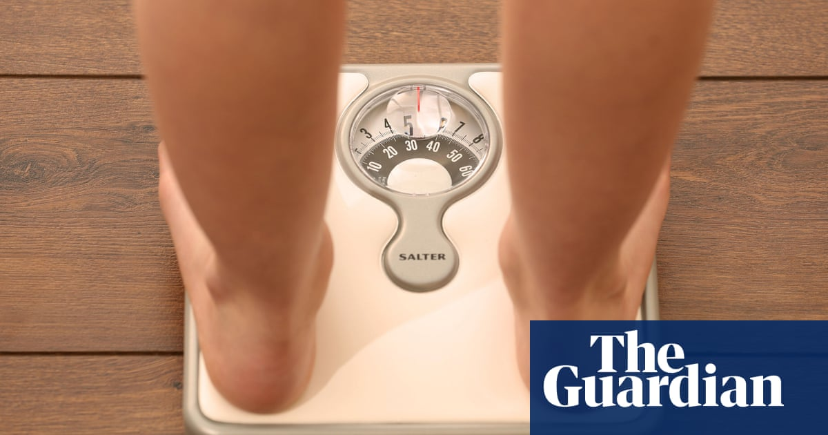 People whose mothers were overweight at higher risk of bowel cancer, study suggests