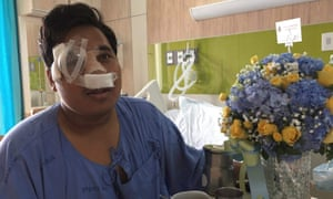 Sirawith Seritiwat, Thai pro-democracy activist, recovers in hospital after being attacked with clubs by a gang wearing motorcycle helmets.