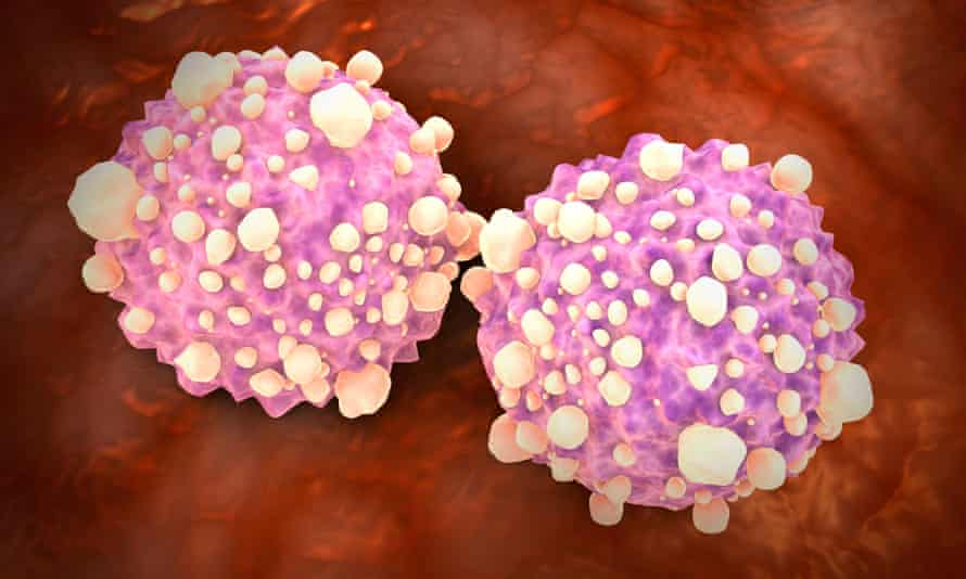 Pancreatic cancer cells. The AI-based system detected 63% of stage I pancreatic cancers, and 100% at stage IV in the study
