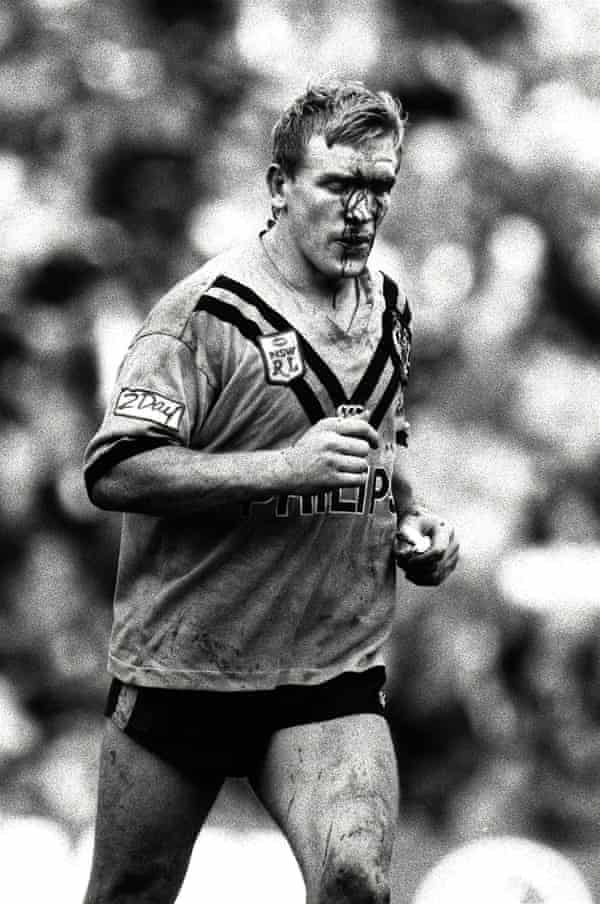 Garry Jack, pictured after a brawl with Roberts in 1991.