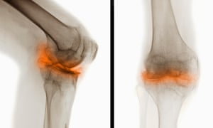 Two X-rays of a knee with severe degenerative osteoarthritic changes
