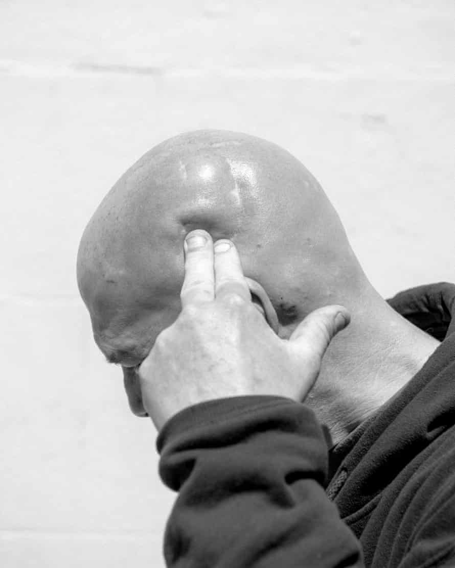 Robert Staskiewicz presses on the soft spot in the side of his head that is a result of a fight where he fractured his skull. Robert is a veteran who said he spent 17 years in prison. He was homeless for a long time but now has an apartment. He still panhandles to make money.