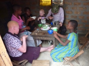 A family with members with albinism shares a meal at home.