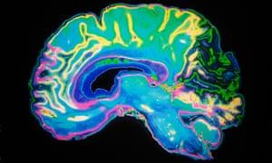 brain scan MRI image