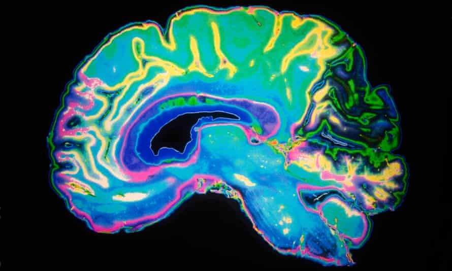 An MRI scan of a human brain: dementia sufferers are becoming younger.