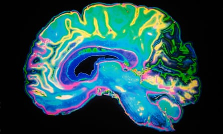 Artificially Coloured MRI Scan Of Human Brain.