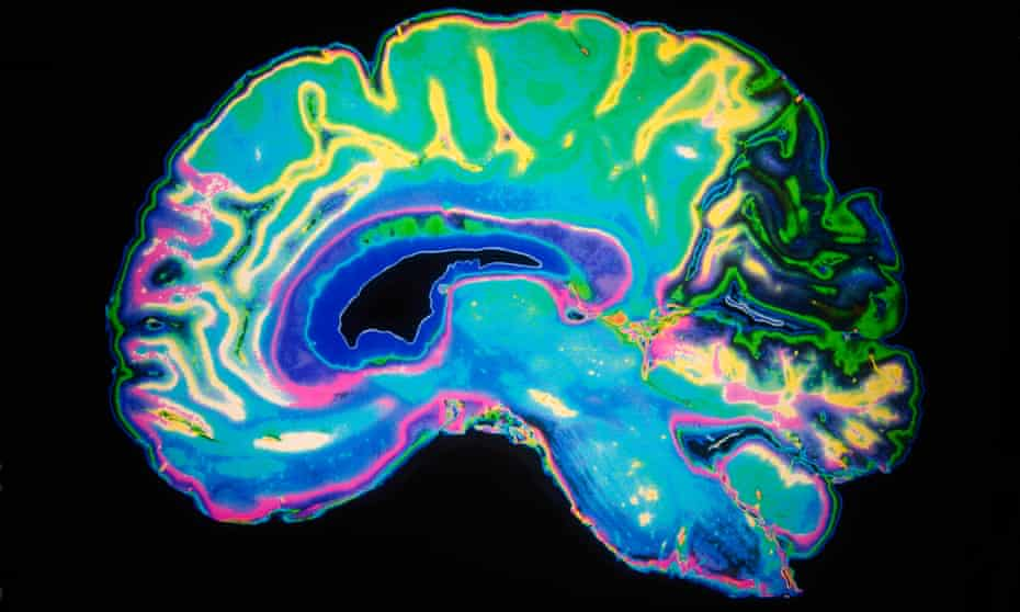 Does solving save your brain?