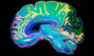 An artificially coloured MRI scan of the human brain.