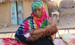 Ghaleb Mashn holds her 11-month-old son, Radad, in al-Hajb village, Yemen