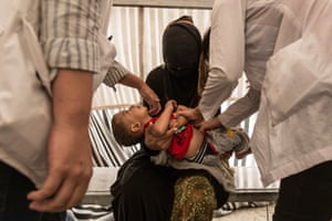 NGO doctors examine a toddler in the camp