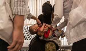 A young mother has her child checked by NGO doctors