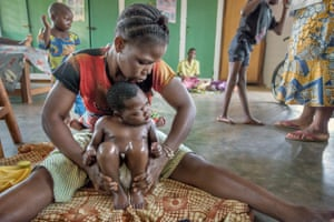 A child with psychomotor problems having a rehabilitation session at Gbemontin hospital