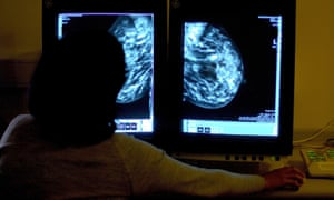 The computer glitch that led to 450,000 cancelled breast screenings
