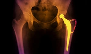 The report found a clear north-south divide in waiting times and referral rates for treatments including hip and knee replacements and cataract surgery.