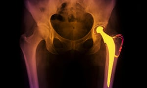 X Ray showing a hip replacement