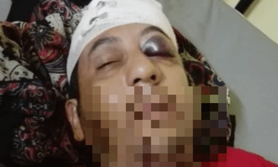 An Iranian refugee on Manus Island who friends say was violently assaulted and is now in Lorengau general hospital