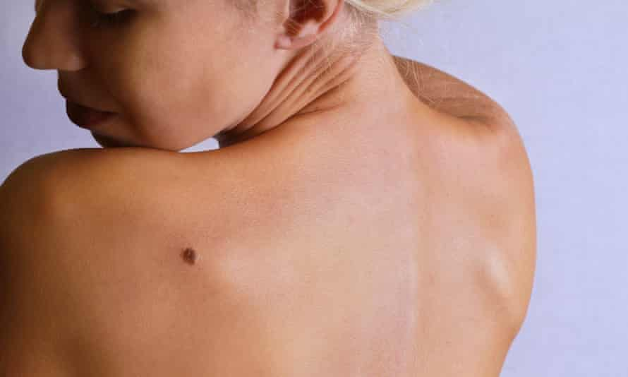 A woman checks a mole on her back. Posed by a model
