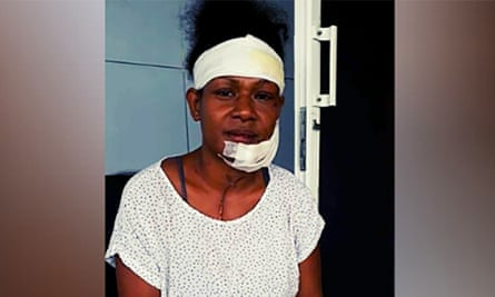 Debbie Kaore, an international rugby player and boxer, has shared an image of herself after being allegedly beaten with an iron by her partner in a domestic attack.