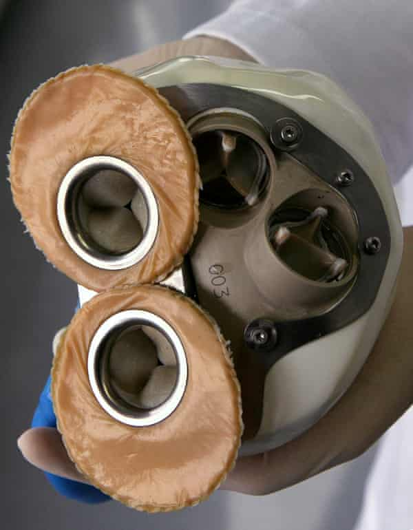 A prototype of a fully implantable artificial heart, as presented by the French heart specialist Alain Carpentier.